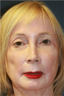 Laser Skin Resurfacing After Photo by Steve Laverson, MD; San Diego, CA - Case 39577