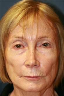 Laser Skin Resurfacing Before Photo by Steve Laverson, MD; San Diego, CA - Case 39577