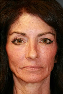 Laser Skin Resurfacing After Photo by Steve Laverson, MD; San Diego, CA - Case 39578