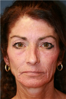 Laser Skin Resurfacing Before Photo by Steve Laverson, MD; San Diego, CA - Case 39578