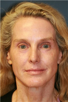 Laser Skin Resurfacing After Photo by Steve Laverson, MD; San Diego, CA - Case 39619