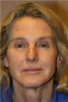 Laser Skin Resurfacing Before Photo by Steve Laverson, MD; San Diego, CA - Case 39619