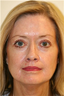 Laser Skin Resurfacing After Photo by Steve Laverson, MD; San Diego, CA - Case 39620