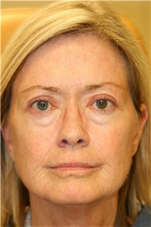 Laser Skin Resurfacing Before Photo by Steve Laverson, MD; San Diego, CA - Case 39620
