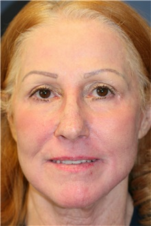Laser Skin Resurfacing After Photo by Steve Laverson, MD; San Diego, CA - Case 39640