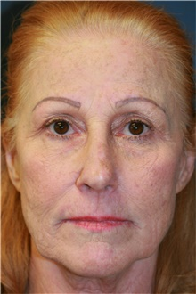 Laser Skin Resurfacing Before Photo by Steve Laverson, MD; San Diego, CA - Case 39640