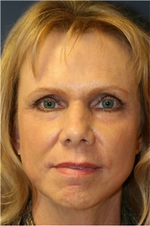 Laser Skin Resurfacing After Photo by Steve Laverson, MD; San Diego, CA - Case 39641
