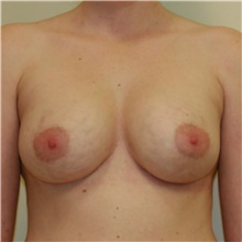 Breast Implant Revision After Photo by Steve Laverson, MD; San Diego, CA - Case 39680