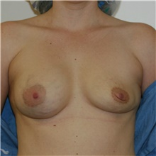 Breast Implant Revision Before Photo by Steve Laverson, MD; San Diego, CA - Case 39680