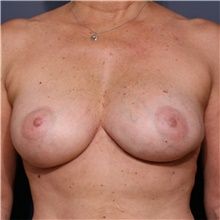Breast Implant Revision After Photo by Steve Laverson, MD; San Diego, CA - Case 39706