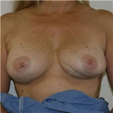 Breast Implant Revision Before Photo by Steve Laverson, MD; San Diego, CA - Case 39706