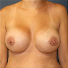 Breast Implant Revision After Photo by Steve Laverson, MD; San Diego, CA - Case 39707
