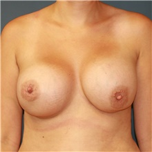 Breast Implant Revision Before Photo by Steve Laverson, MD; San Diego, CA - Case 39707