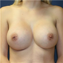 Breast Implant Revision After Photo by Steve Laverson, MD; San Diego, CA - Case 39848