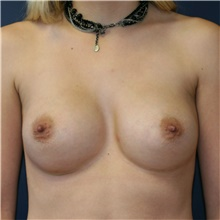 Breast Implant Revision Before Photo by Steve Laverson, MD; San Diego, CA - Case 39848
