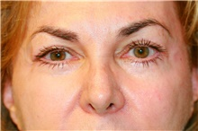 Eyelid Surgery After Photo by Steve Laverson, MD; San Diego, CA - Case 39997