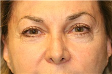 Eyelid Surgery Before Photo by Steve Laverson, MD; San Diego, CA - Case 39997