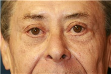 Eyelid Surgery After Photo by Steve Laverson, MD; San Diego, CA - Case 40045