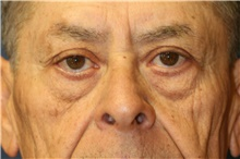 Eyelid Surgery Before Photo by Steve Laverson, MD; San Diego, CA - Case 40045