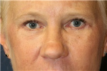 Eyelid Surgery After Photo by Steve Laverson, MD; San Diego, CA - Case 40046