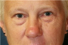 Eyelid Surgery Before Photo by Steve Laverson, MD; San Diego, CA - Case 40046