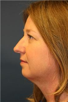 Rhinoplasty Before Photo by Steve Laverson, MD; San Diego, CA - Case 40065