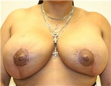 Breast Reduction After Photo by Steve Laverson, MD; San Diego, CA - Case 40070