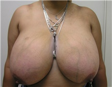 Breast Reduction Before Photo by Steve Laverson, MD; San Diego, CA - Case 40070