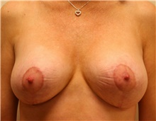 Breast Reduction After Photo by Steve Laverson, MD; San Diego, CA - Case 40071