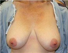 Breast Reduction Before Photo by Steve Laverson, MD; San Diego, CA - Case 40071