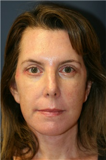 Facelift After Photo by Steve Laverson, MD; San Diego, CA - Case 40094