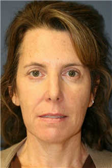 Facelift Before Photo by Steve Laverson, MD; San Diego, CA - Case 40094