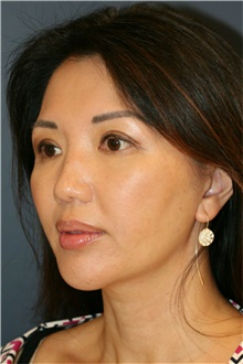 Chin Augmentation After Photo by Steve Laverson, MD; San Diego, CA - Case 40412