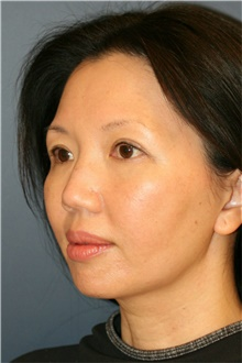 Chin Augmentation Before Photo by Steve Laverson, MD; San Diego, CA - Case 40412