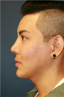 Chin Augmentation After Photo by Steve Laverson, MD; San Diego, CA - Case 40414