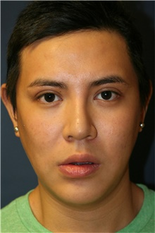 Chin Augmentation Before Photo by Steve Laverson, MD; San Diego, CA - Case 40414