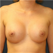 Breast Augmentation After Photo by Steve Laverson, MD; San Diego, CA - Case 40431