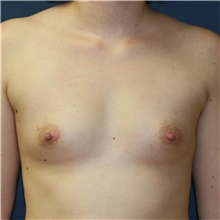 Breast Augmentation Before Photo by Steve Laverson, MD; San Diego, CA - Case 40431