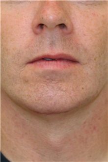 Chin Augmentation After Photo by Steve Laverson, MD; San Diego, CA - Case 40436