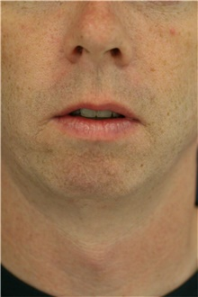 Chin Augmentation Before Photo by Steve Laverson, MD; San Diego, CA - Case 40436