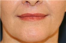 Lip Augmentation / Enhancement After Photo by Steve Laverson, MD; San Diego, CA - Case 40437