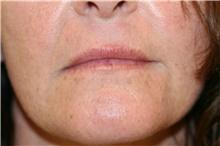 Lip Augmentation / Enhancement Before Photo by Steve Laverson, MD; San Diego, CA - Case 40437