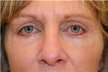 Eyelid Surgery After Photo by Steve Laverson, MD; San Diego, CA - Case 40479