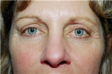 Eyelid Surgery Before Photo by Steve Laverson, MD; San Diego, CA - Case 40479