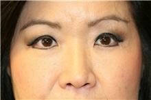 Eyelid Surgery After Photo by Steve Laverson, MD; San Diego, CA - Case 40480
