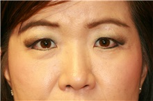 Eyelid Surgery Before Photo by Steve Laverson, MD; San Diego, CA - Case 40480