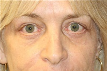 Eyelid Surgery After Photo by Steve Laverson, MD; San Diego, CA - Case 40513