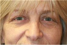 Eyelid Surgery Before Photo by Steve Laverson, MD; San Diego, CA - Case 40513