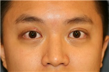 Eyelid Surgery After Photo by Steve Laverson, MD; San Diego, CA - Case 40514