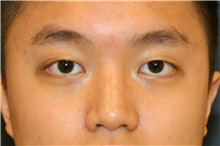 Eyelid Surgery Before Photo by Steve Laverson, MD; San Diego, CA - Case 40514